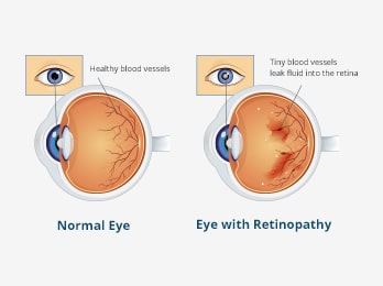 Diabetic Eye Disease Awareness Month