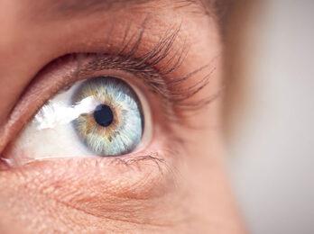 Eye with Cataract